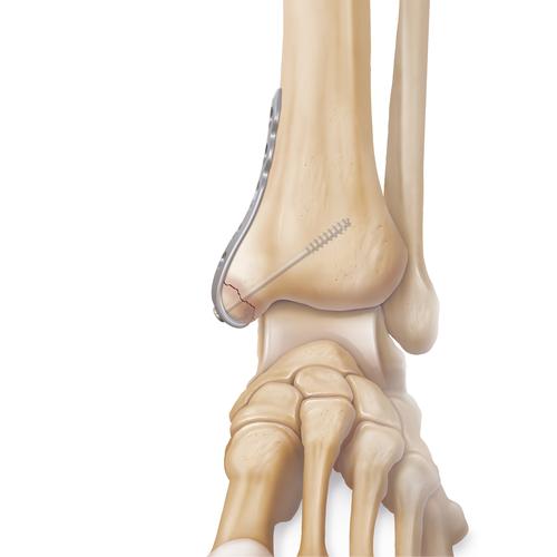 Medium ankle fracture deltoid avulsion illlb1 0439 en 13bdbd5a 16da 447c b516 b445c995b268