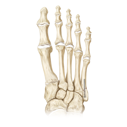 Medium foot fracture forefoot 20180228 126906 69aa321a 5449 4606 88d7 1481b0947a04