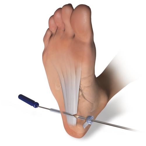 Medium foot inflammation plantar fasciitis endoblade release ill1 00084 en a 68f19582 6fc6 4fb5 b8d2 954b277aa4a2