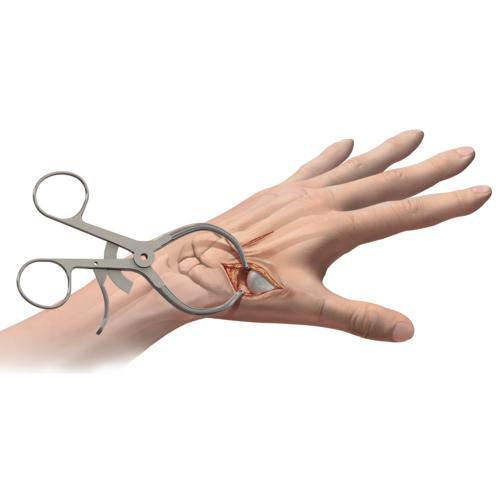 Medium hand arthritis mini tightrope cmc lt1 0427 en a29b1e15 ef3e 49b1 86d1 9db9dd9dbdc9