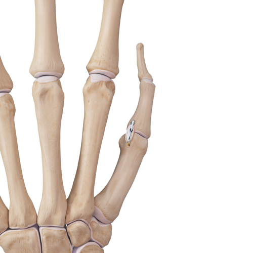 Medium hand tear finger sprain thumb ucl repair ill1 00161 en 9c0c3a27 903c 4bcc 80ea 67b060b8700c