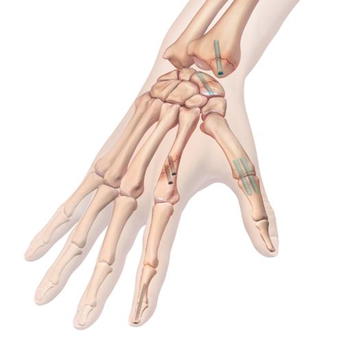 Medium hand wrist fracture repair biocompression flat illln1 0415 en ea7f3f0d 9c30 4519 a631 026bdc91cde1