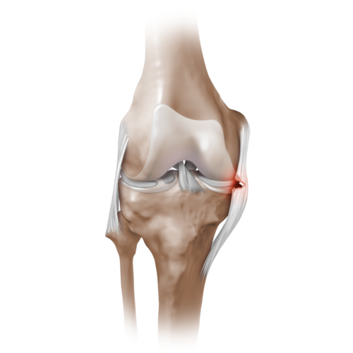 Medium knee tear medial collateral ligament mcl 20160925 110986 ec533839 74d1 4514 8f7d cba7a751fb62