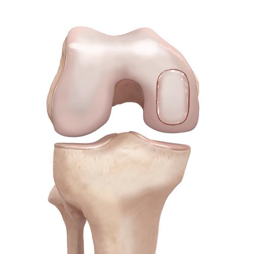 Medium orthobiologics allograft knee biouni osteochondral transplant illlr1 00014 en ab114504 54b3 4e26 82a8 31eb1f8dddfe