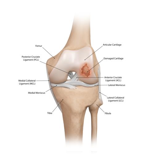 Medium orthobiologics cartilage knee restoration oats ill1 00047 en e2775b7f fa49 4df3 aaa6 5190fa36ca30