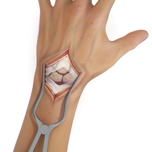 Medium wrist instability scapholunate axis slam illlt1 0401 en 476b8c21 8a2a 4c77 b8d8 ffa5c8e9f40c