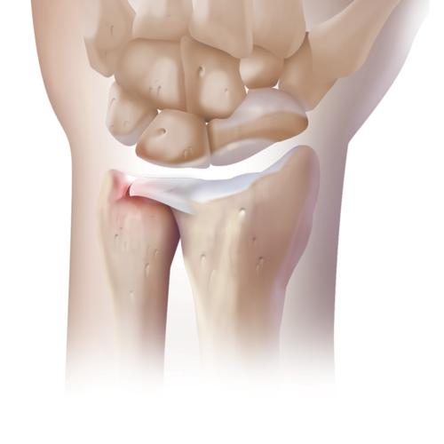 Medium wrist tear tfcc triangular fibrocartilage complex 20180228 126915 cddb7f04 4153 4b61 b036 ab8fdf55e120